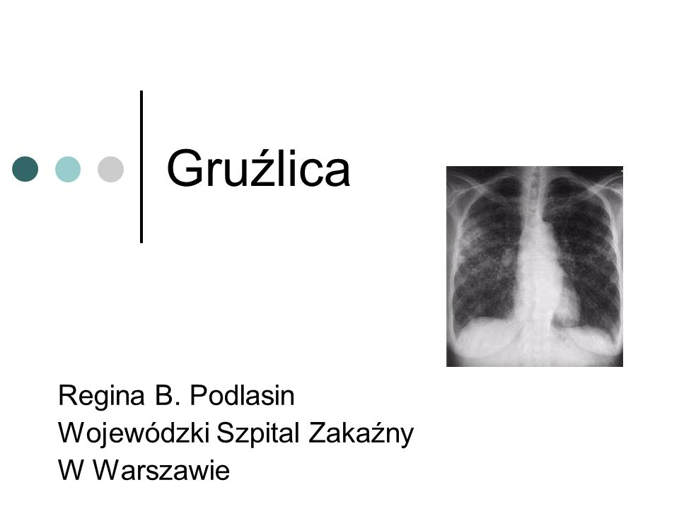 Regina B. Podlasin Wojewódzki Szpital Zakaźny W Warszawie