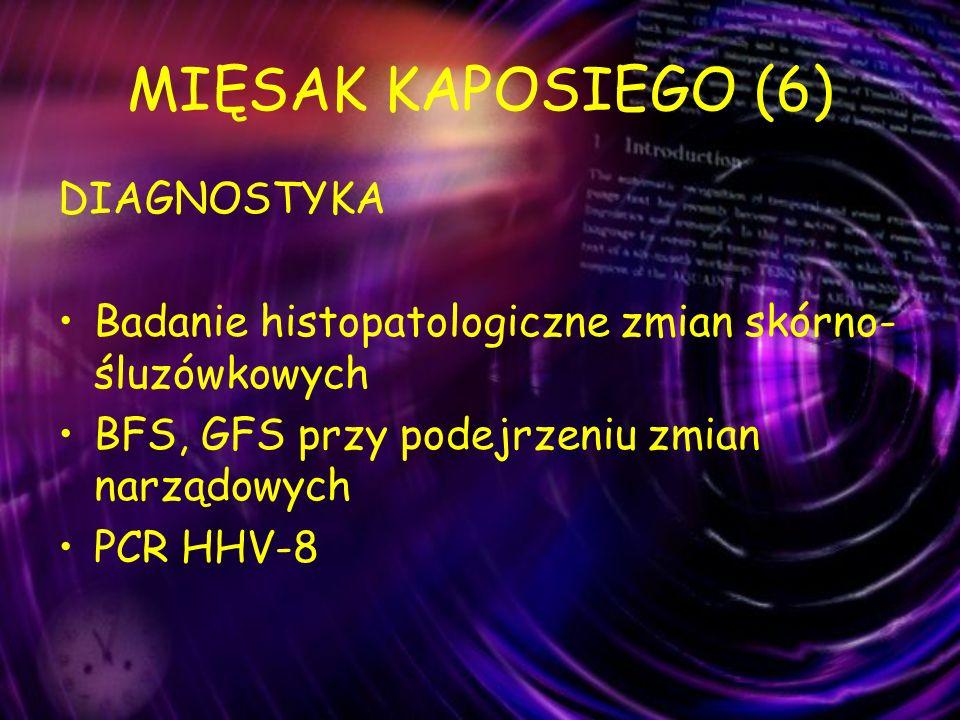 MIĘSAK KAPOSIEGO (6) DIAGNOSTYKA