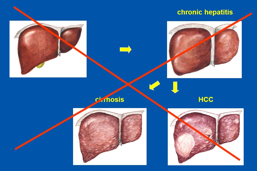 chronic hepatitis cirrhosis HCC