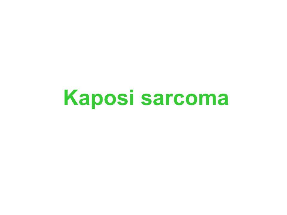 Kaposi sarcoma