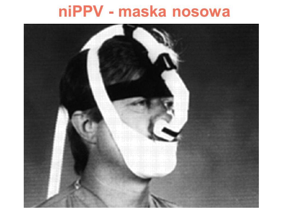niPPV - maska nosowa