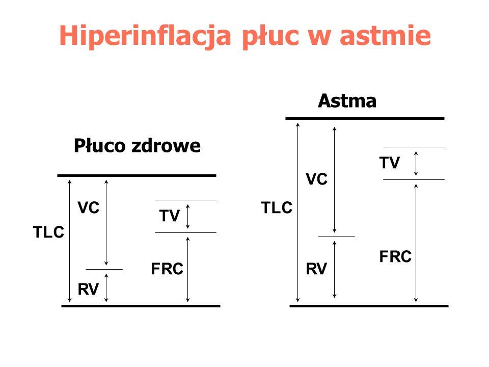 Hiperinflacja płuc w astmie
