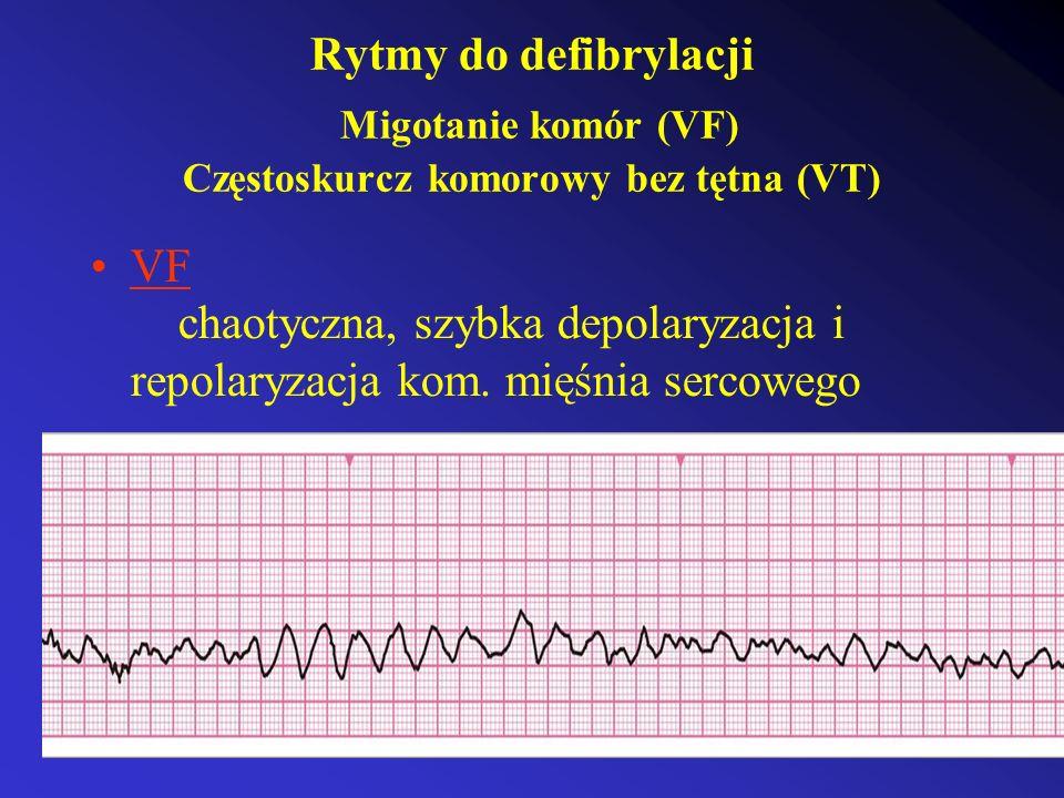 Rytmy do defibrylacji Migotanie komór (VF) Częstoskurcz komorowy bez tętna (VT)