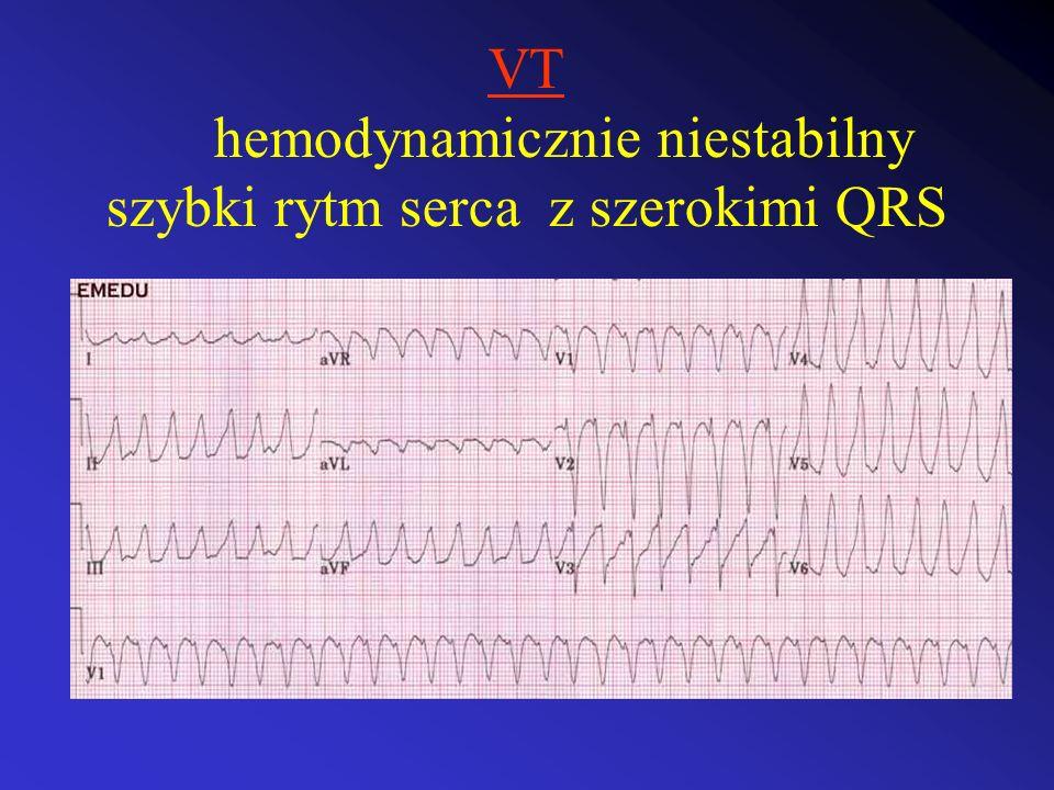 VT hemodynamicznie niestabilny szybki rytm serca z szerokimi QRS