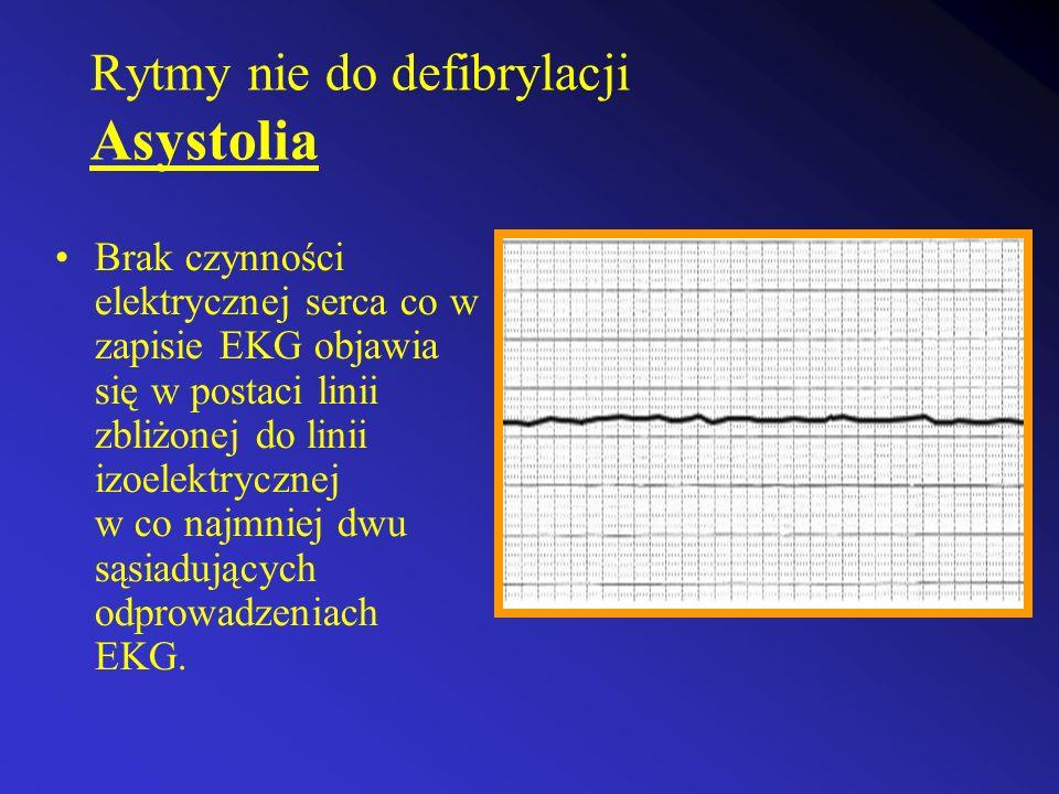 Rytmy nie do defibrylacji Asystolia