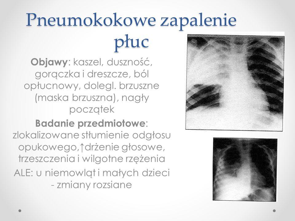 Pneumokokowe zapalenie płuc