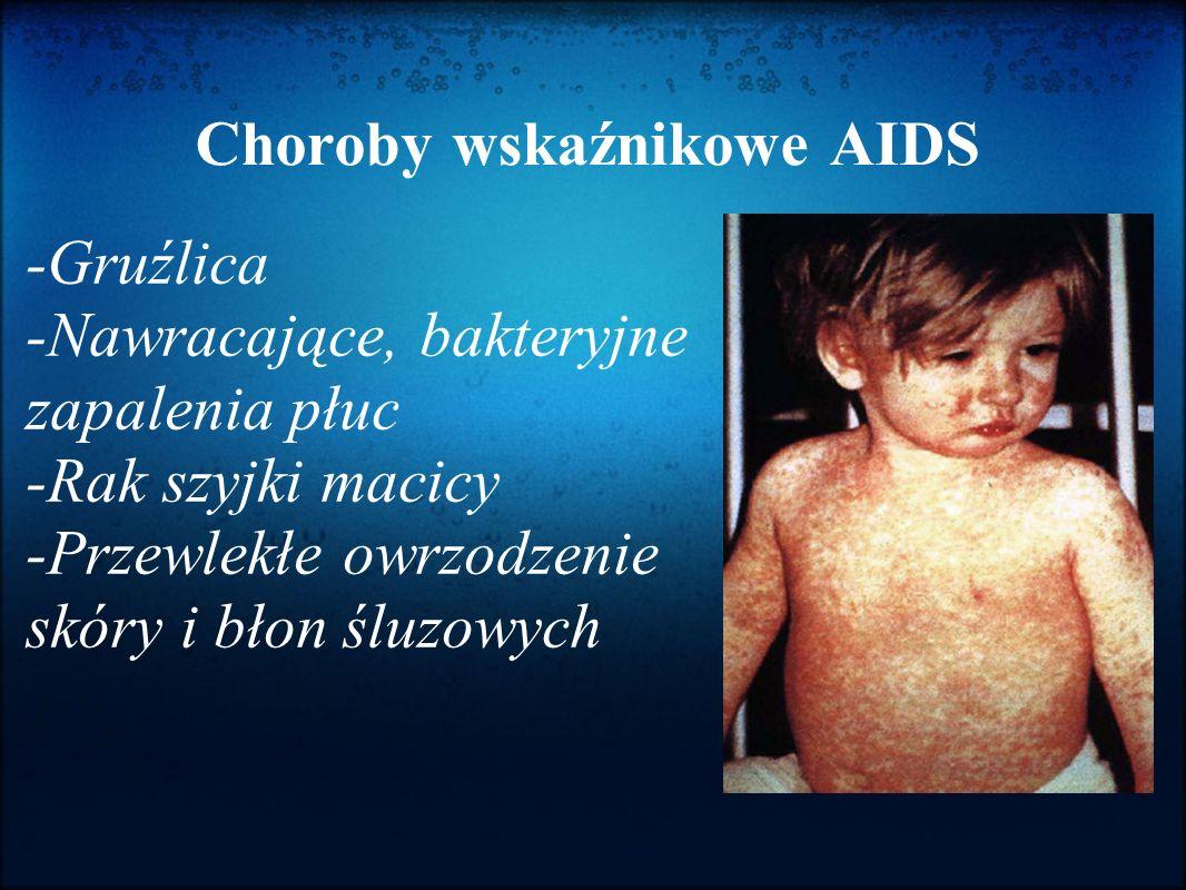 Choroby wskaźnikowe AIDS