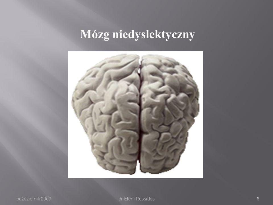 Mózg niedyslektyczny październik 2009 dr Eleni Rossides
