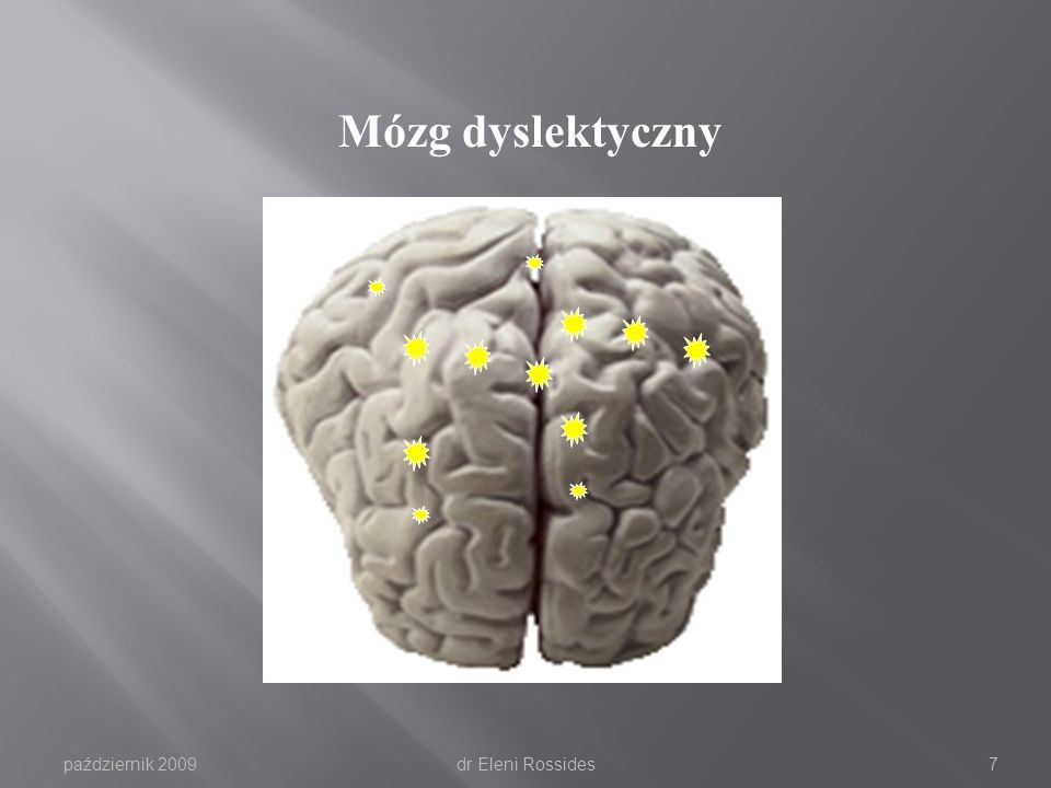 Mózg dyslektyczny październik 2009 dr Eleni Rossides