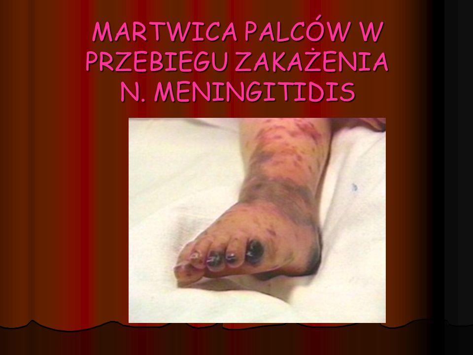 MARTWICA PALCÓW W PRZEBIEGU ZAKAŻENIA N. MENINGITIDIS