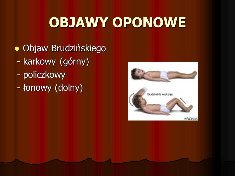 OBJAWY OPONOWE Objaw Brudzińskiego - karkowy (górny) - policzkowy