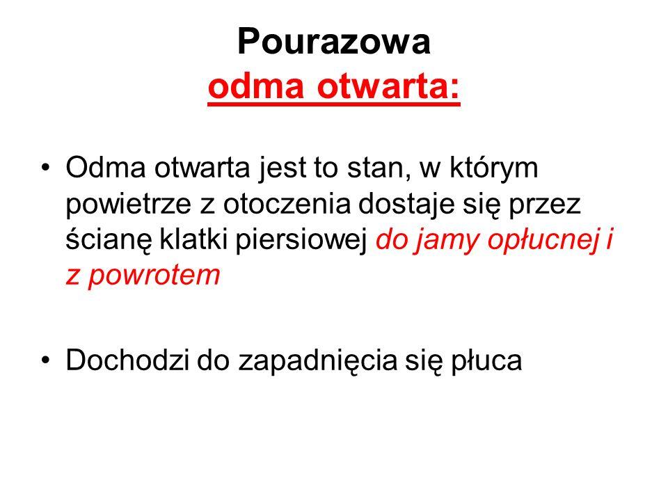 Pourazowa odma otwarta: