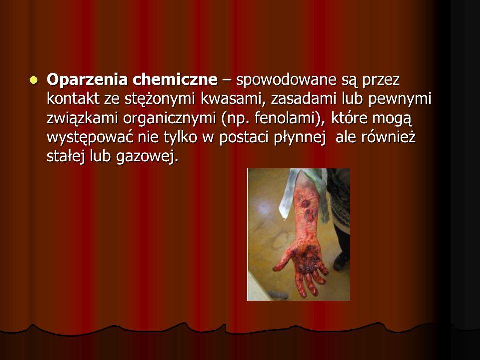 Oparzenia chemiczne – spowodowane są przez kontakt ze stężonymi kwasami, zasadami lub pewnymi związkami organicznymi (np.