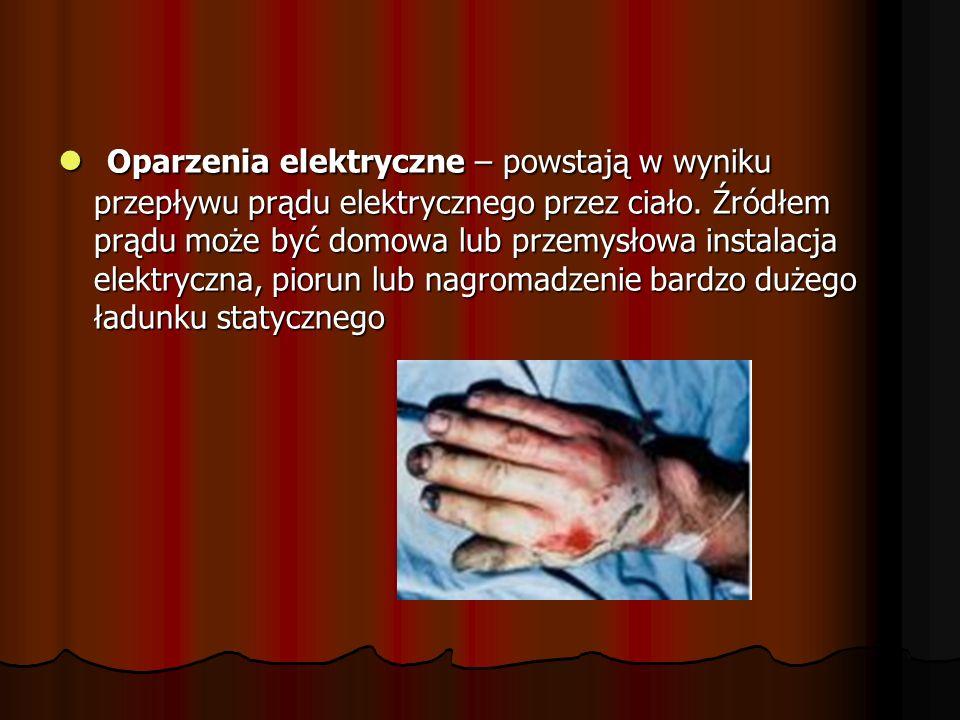Oparzenia elektryczne – powstają w wyniku przepływu prądu elektrycznego przez ciało.