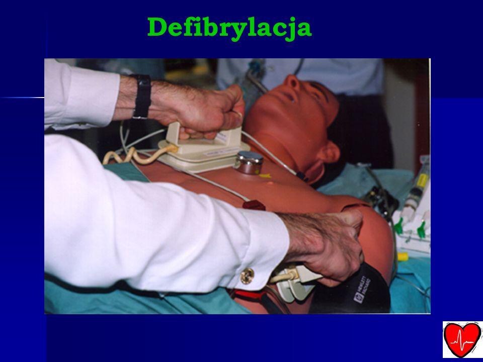 Defibrylacja