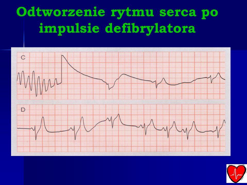 Odtworzenie rytmu serca po impulsie defibrylatora