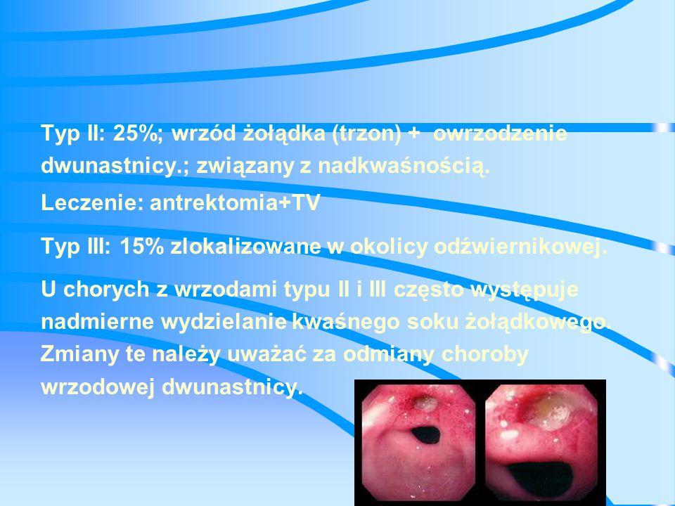 Typ II: 25%; wrzód żołądka (trzon) + owrzodzenie dwunastnicy