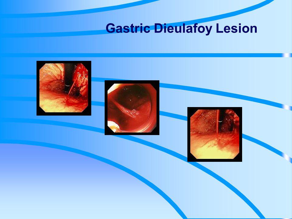 Gastric Dieulafoy Lesion
