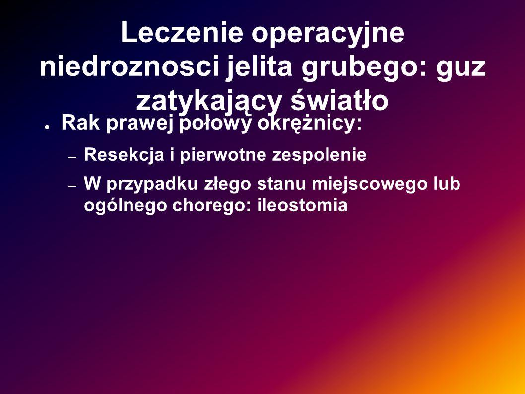 Leczenie operacyjne niedroznosci jelita grubego: guz zatykający światło