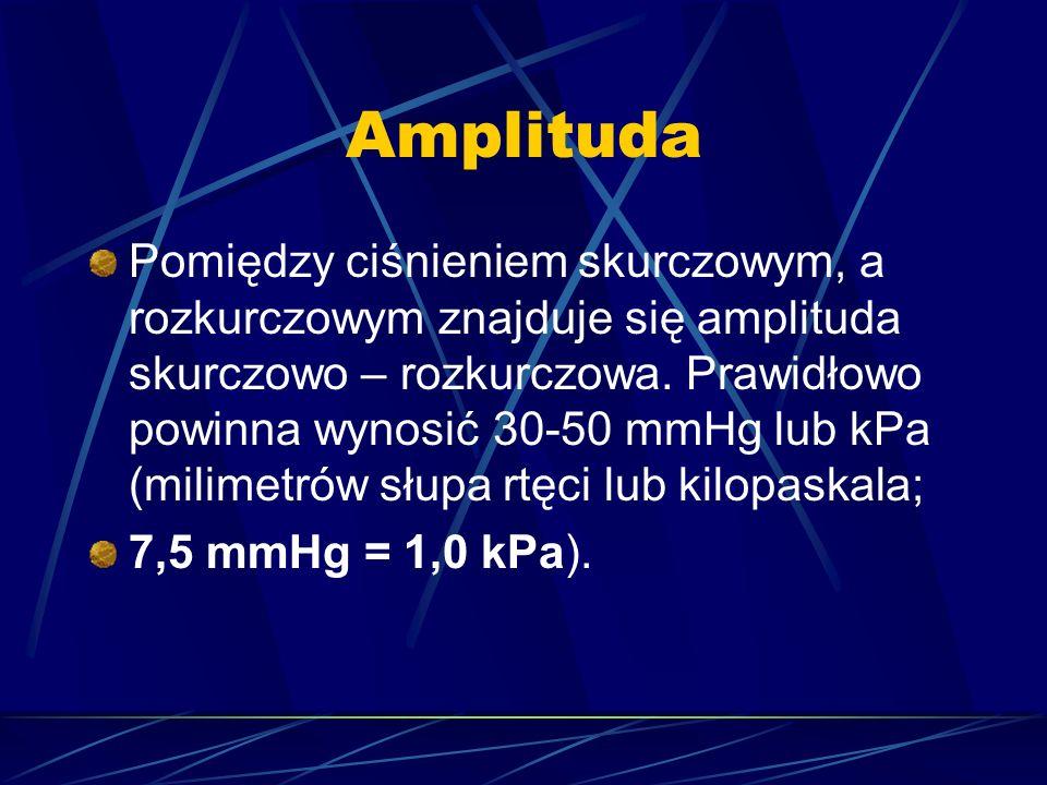 Amplituda