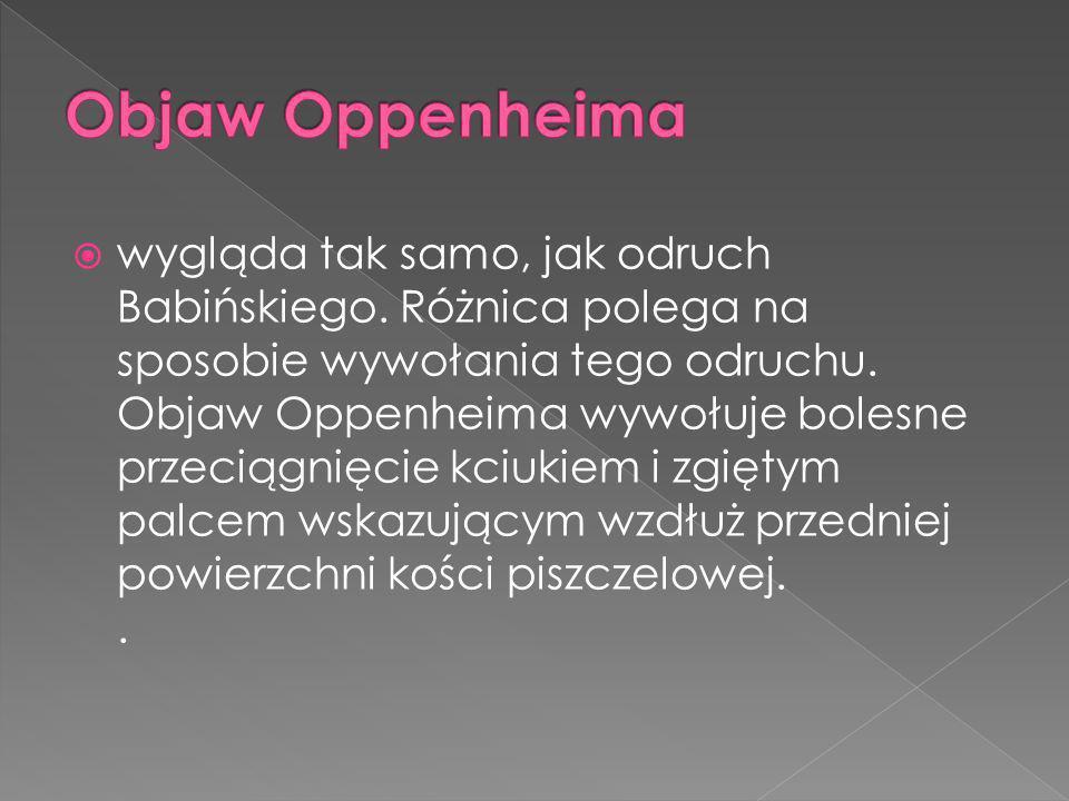 Objaw Oppenheima
