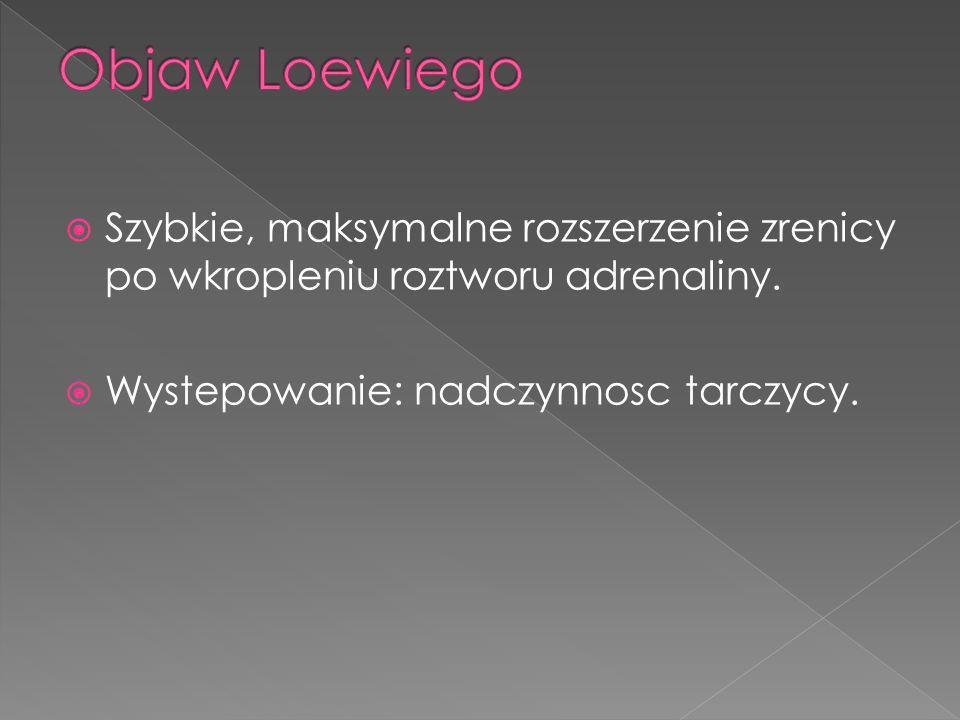 Objaw Loewiego Szybkie, maksymalne rozszerzenie zrenicy po wkropleniu roztworu adrenaliny.