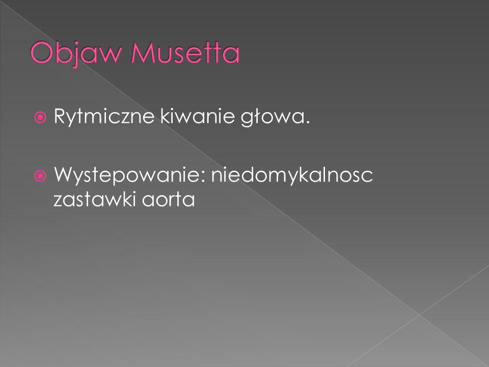 Objaw Musetta Rytmiczne kiwanie głowa.