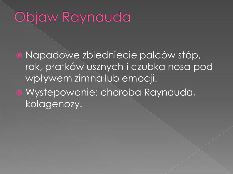 Objaw Raynauda Napadowe zbledniecie palców stóp, rak, płatków usznych i czubka nosa pod wpływem zimna lub emocji.