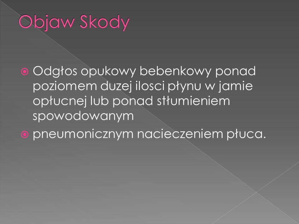 Objaw Skody Odgłos opukowy bebenkowy ponad poziomem duzej ilosci płynu w jamie opłucnej lub ponad stłumieniem spowodowanym.
