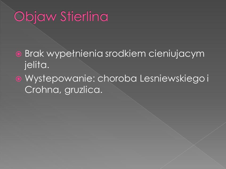 Objaw Stierlina Brak wypełnienia srodkiem cieniujacym jelita.