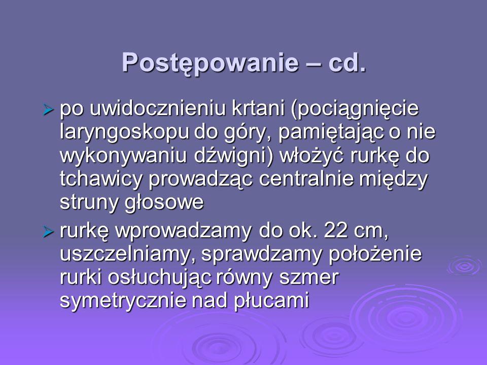 Postępowanie – cd.