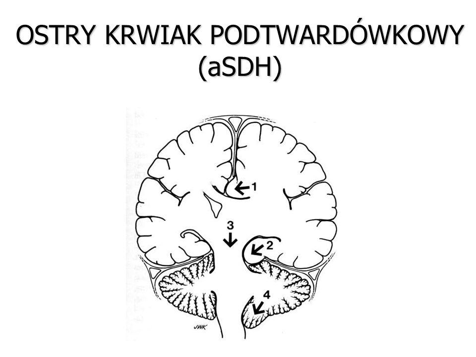 OSTRY KRWIAK PODTWARDÓWKOWY (aSDH)