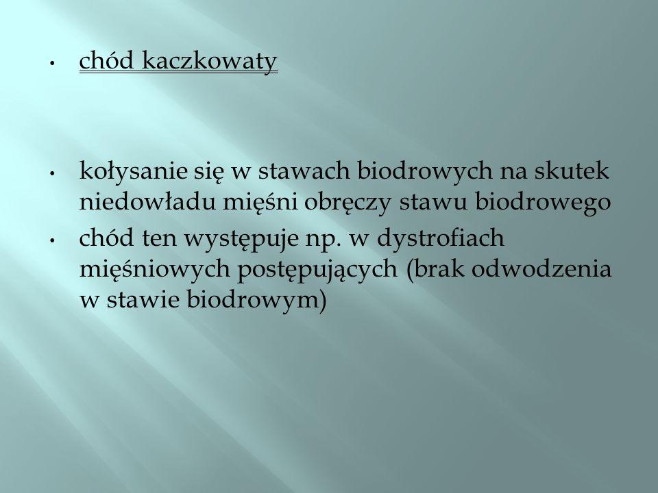 chód kaczkowaty kołysanie się w stawach biodrowych na skutek niedowładu mięśni obręczy stawu biodrowego.