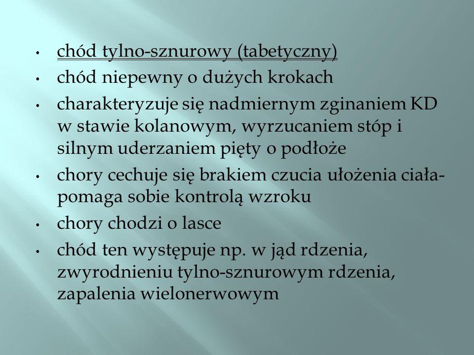 chód tylno-sznurowy (tabetyczny)