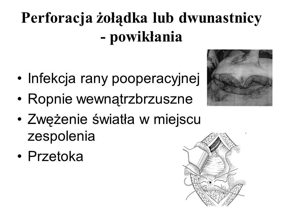 Perforacja żołądka lub dwunastnicy - powikłania