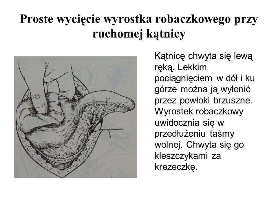 Proste wycięcie wyrostka robaczkowego przy ruchomej kątnicy