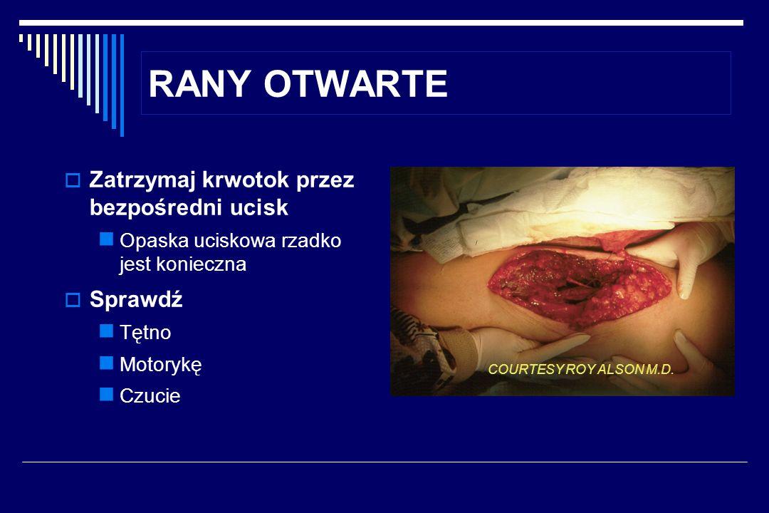 RANY OTWARTE Zatrzymaj krwotok przez bezpośredni ucisk Sprawdź