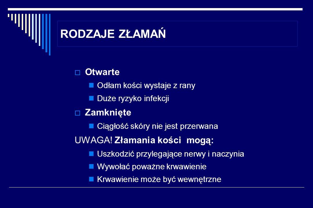 RODZAJE ZŁAMAŃ Otwarte Zamknięte UWAGA! Złamania kości mogą: