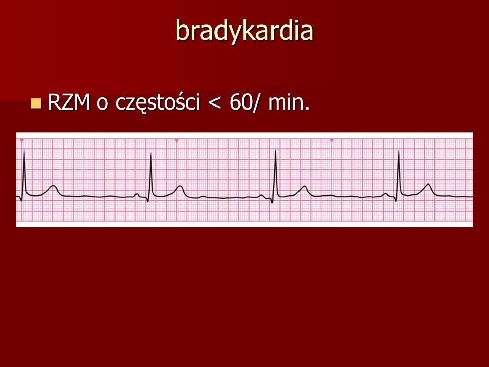 bradykardia RZM o częstości < 60/ min.