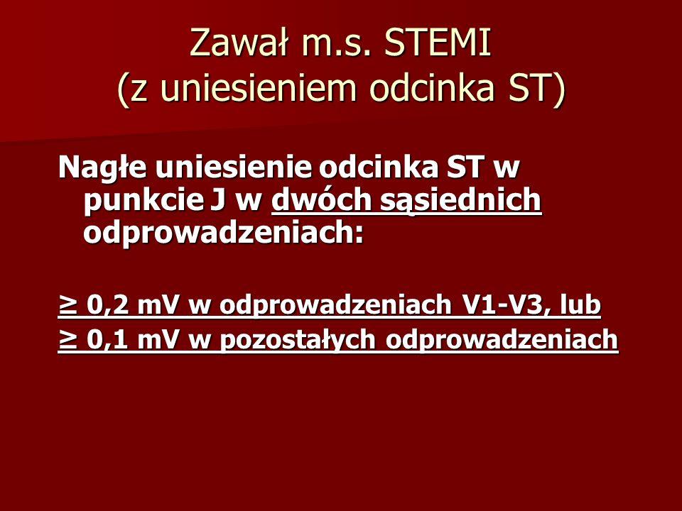 Zawał m.s. STEMI (z uniesieniem odcinka ST)