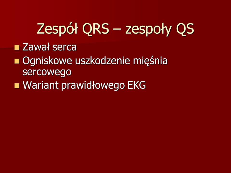 Zespół QRS – zespoły QS Zawał serca