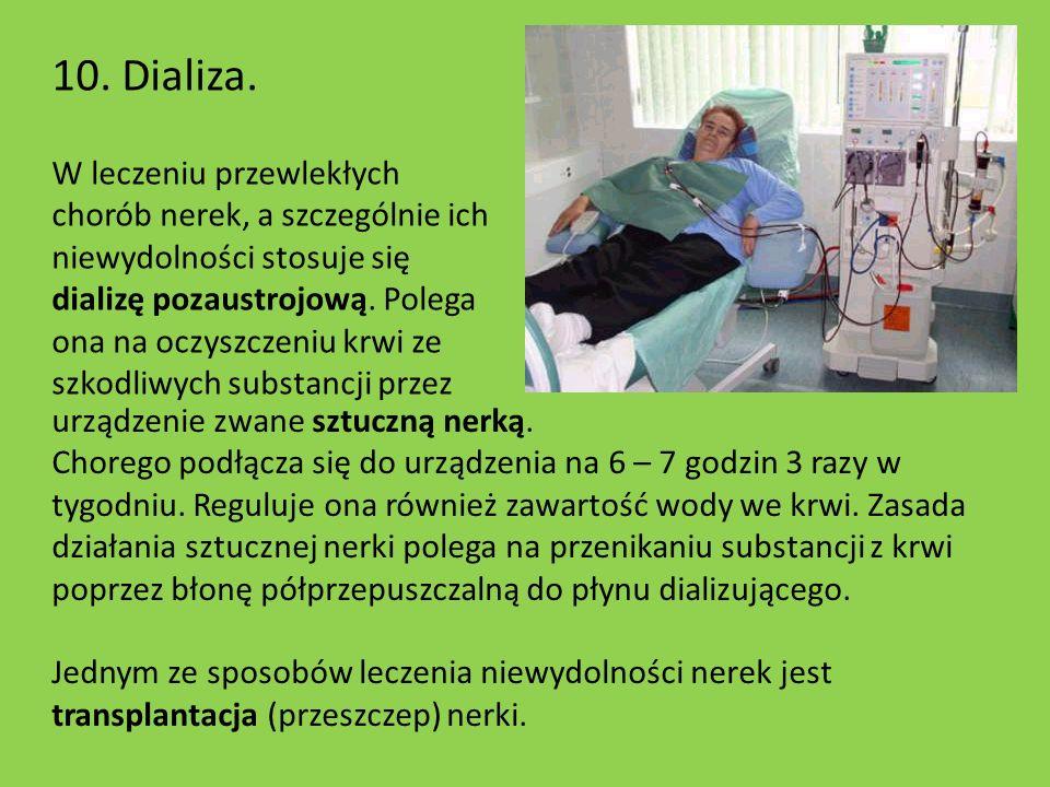 10. Dializa.