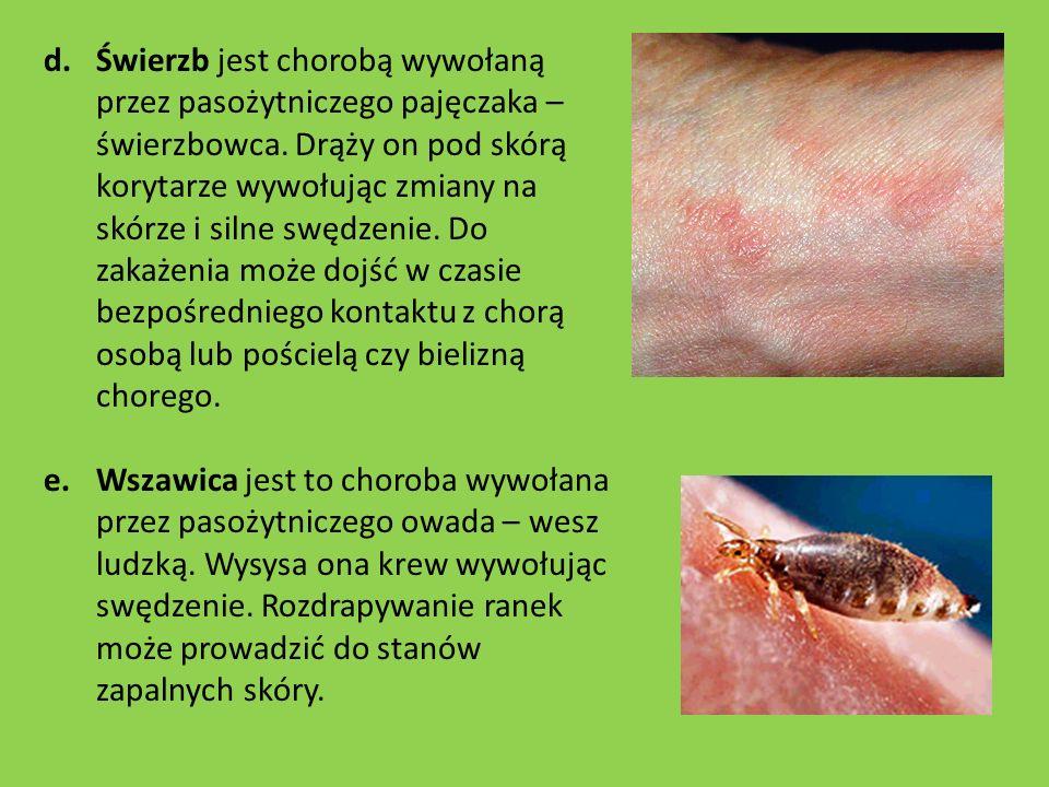 Świerzb jest chorobą wywołaną przez pasożytniczego pajęczaka – świerzbowca. Drąży on pod skórą korytarze wywołując zmiany na skórze i silne swędzenie. Do zakażenia może dojść w czasie bezpośredniego kontaktu z chorą osobą lub pościelą czy bielizną chorego.