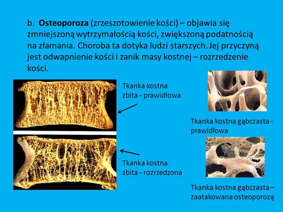 b. Osteoporoza (zrzeszotowienie kości) – objawia się zmniejszoną wytrzymałością kości, zwiększoną podatnością na złamania. Choroba ta dotyka ludzi starszych. Jej przyczyną jest odwapnienie kości i zanik masy kostnej – rozrzedzenie kości.