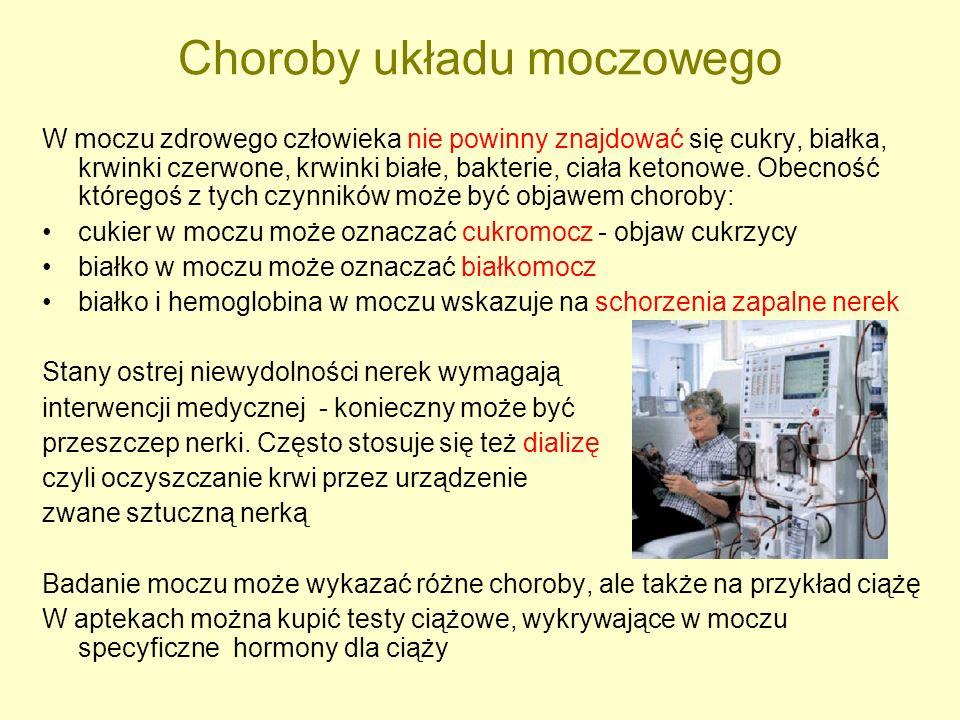 Choroby układu moczowego