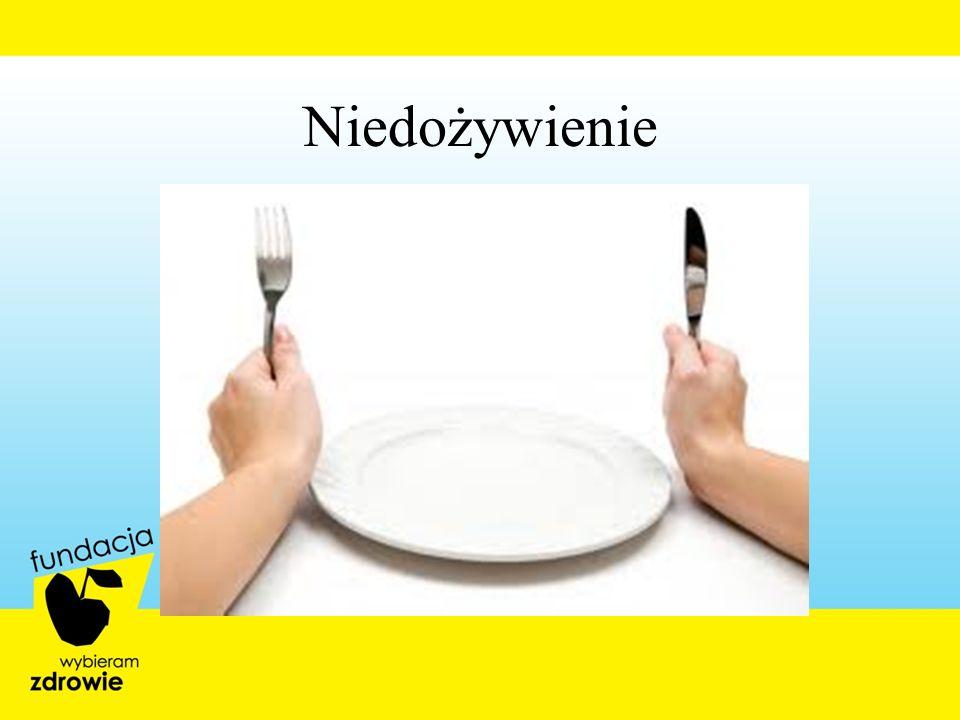 Niedożywienie 4