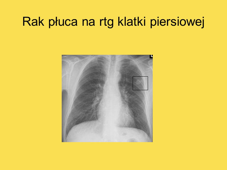 Rak płuca na rtg klatki piersiowej
