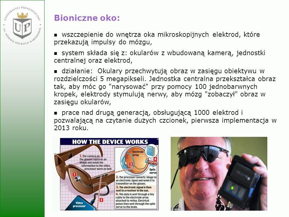 Bioniczne oko:wszczepienie do wnętrza oka mikroskopijnych elektrod, które przekazują impulsy do mózgu,