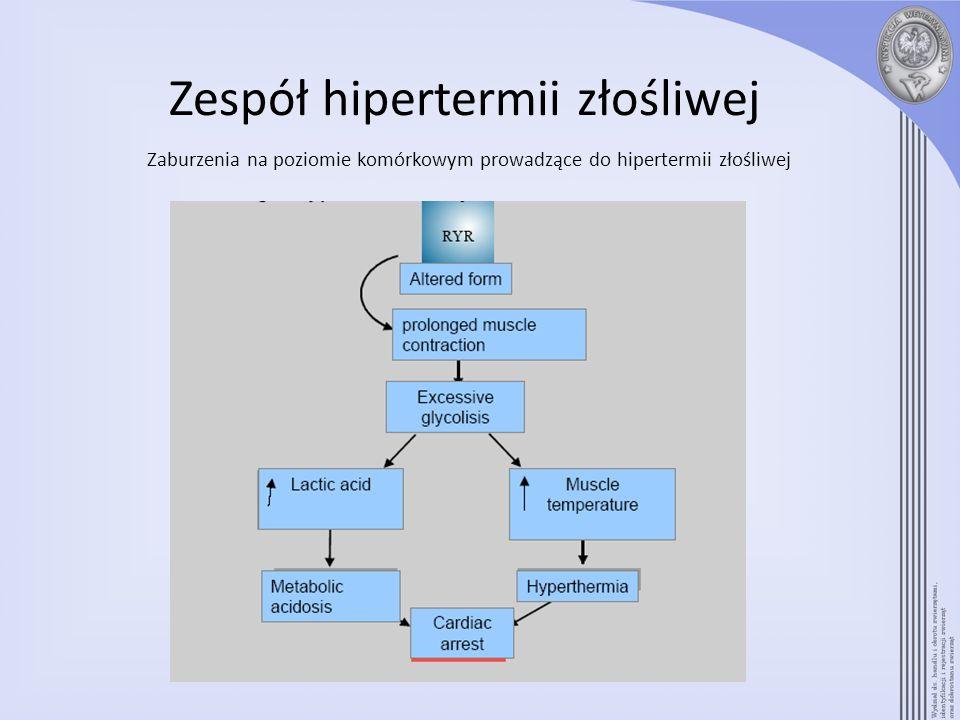 Zespół hipertermii złośliwej