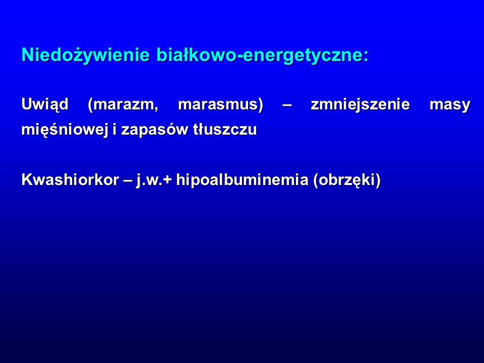 Niedożywienie białkowo-energetyczne: